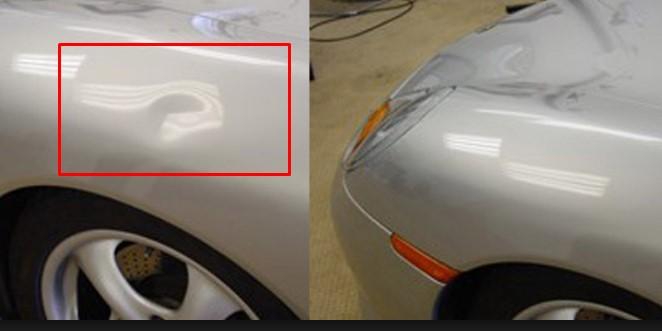 boyasız göçük düzeltme öncesi ve sonrası